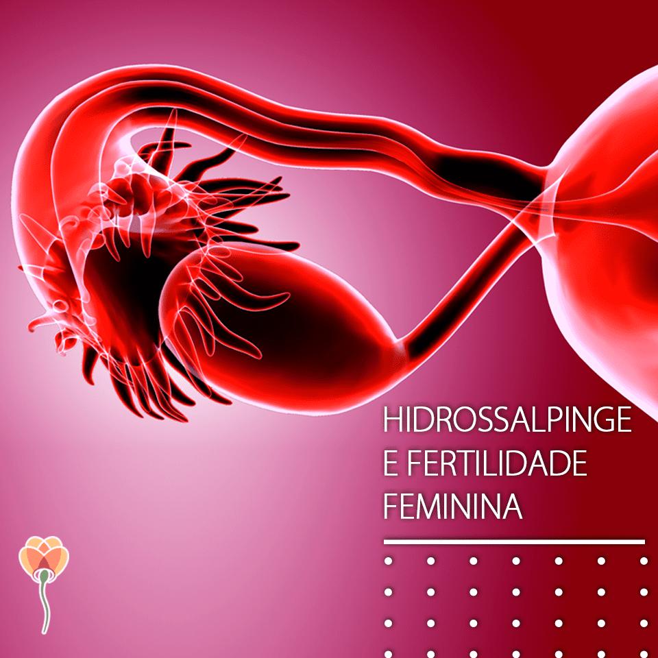 Como a Hidrossalpinge afeta a Fertilidade
